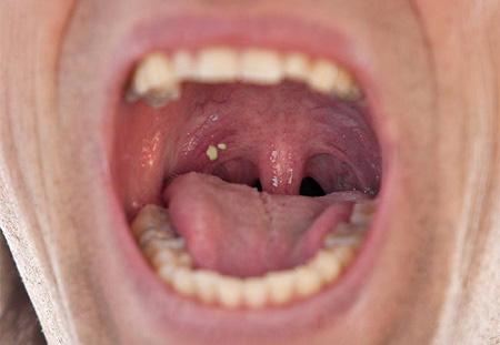 ung thư vòm họng và viêm họng