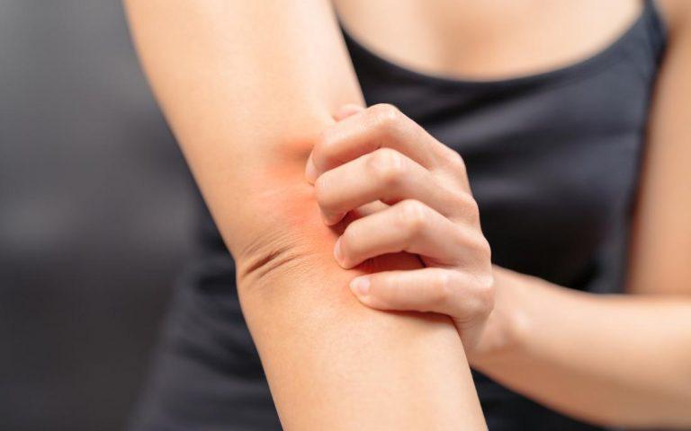 Một số cách giảm ngứa cho vùng da bị nấm da