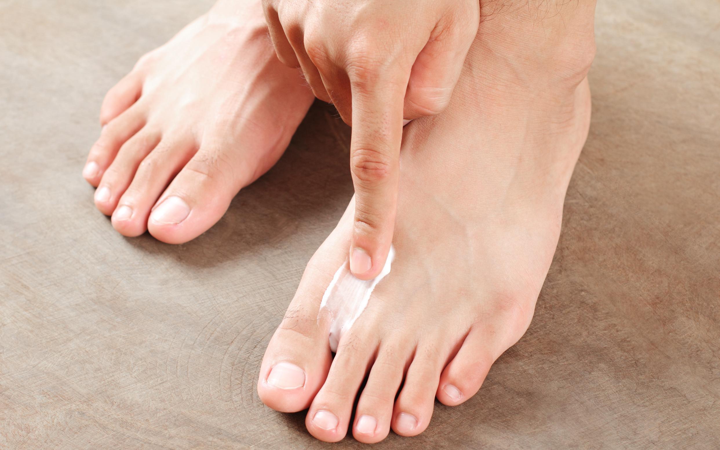Tổng hợp biện pháp điều trị nấm da hiệu quả, an toàn