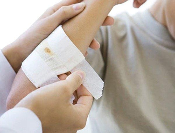 Vết thương hở: Sai lầm khi cầm máu và hướng dẫn cầm máu đúng cách khi bị thương - Ảnh 3.