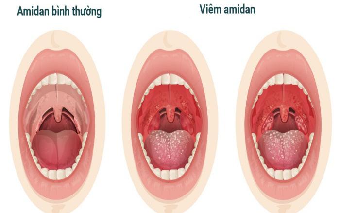 Viêm amidan hốc mủ là gì? Hướng dẫn cách nhận biết và phương pháp điều trị