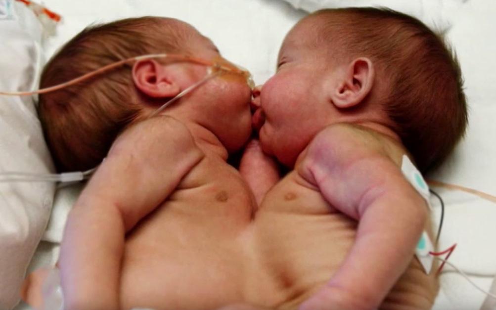 Song sinh dính liền: Nguyên nhân, triệu chứng, phẫu thuật và tỷ lệ sống sót