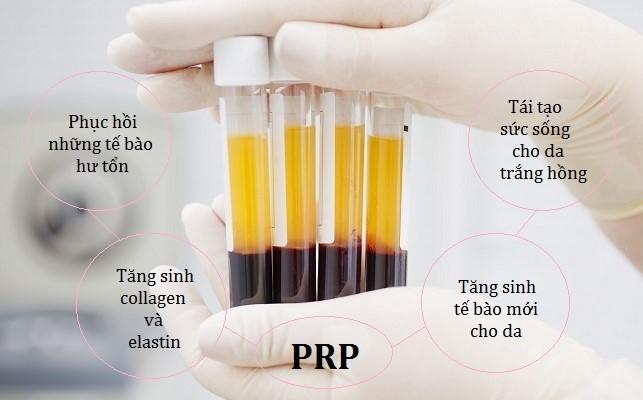 Huyết tương là gì? Thành phần và chức năng của huyết tương - Ảnh 3.