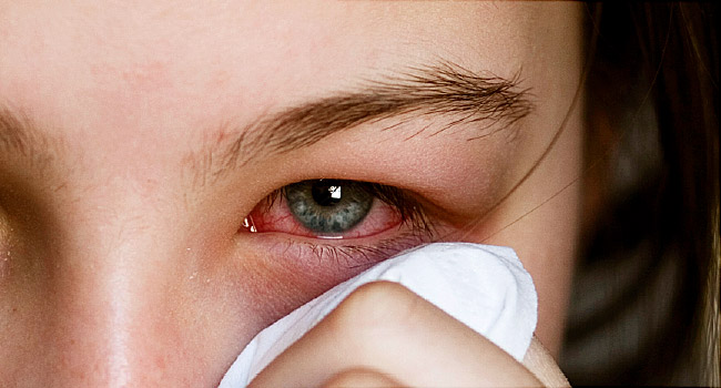 Điểm danh 5 bệnh mùa thu thường gặp và cách phòng tránh - Ảnh 6.