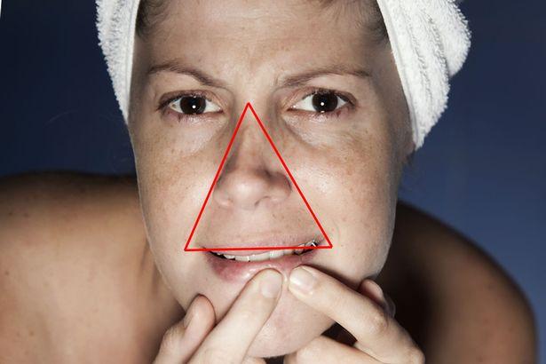Nhiễm trùng nội sọ do nặn mụn sai cách ở vùng tam giác chết trên mặt, chuyên gia khuyên gì? - Ảnh 4.