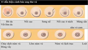 Ung thư vú thể ống xâm nhập - Ảnh 2.