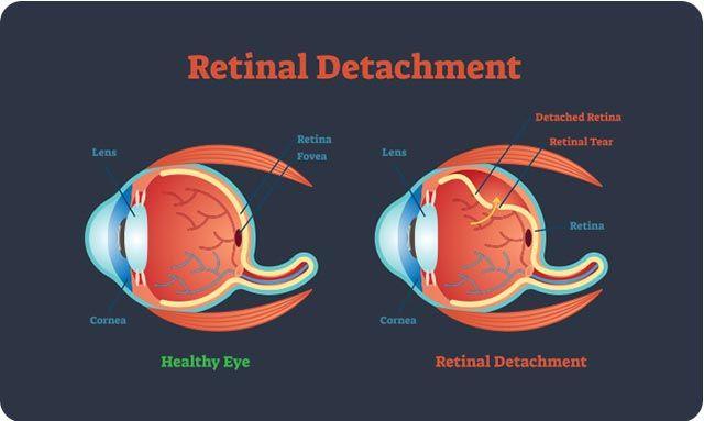 Điều trị cận thị tiến triển: Lựa chọn phương án sớm để giảm nguy cơ biến chứng - Ảnh 2.