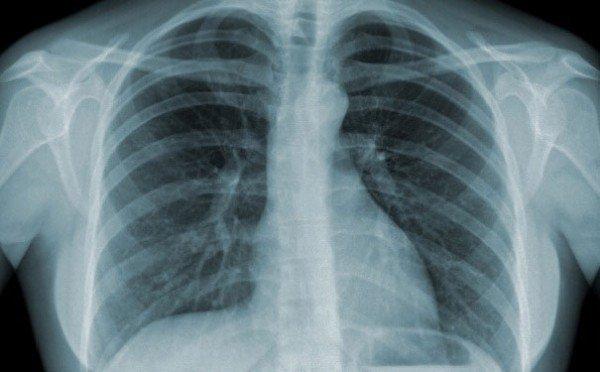 Giữ phổi khoẻ mạnh trong dịch Covid-19 bằng cách bỏ ngay những thói quen phá hoại phổi nào? - Ảnh 4.