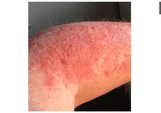 8 dạng phát ban trên da có thể là dấu hiệu COVID-19 - Ảnh 4.
