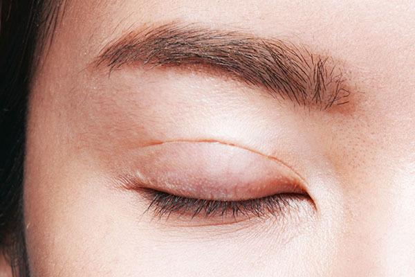 Cắt mí mắt: Hậu quả khôn lường và biện pháp khắc phục mí mắt bị lỗi, hỏng - Ảnh 4.