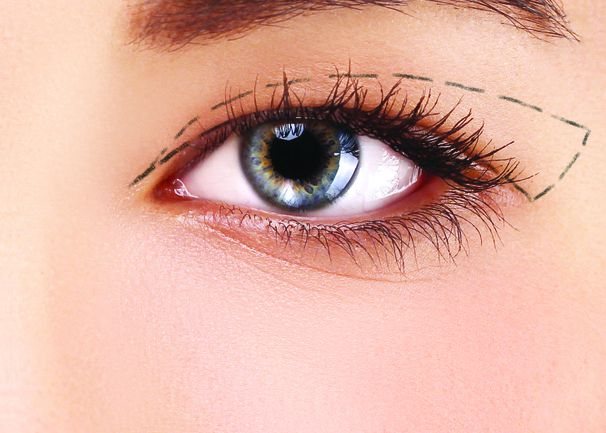 Cắt mí mắt: Hậu quả khôn lường và biện pháp khắc phục mí mắt bị lỗi, hỏng - Ảnh 3.