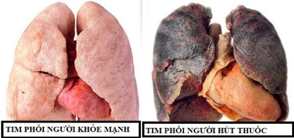 Nguy hiểm của khói thuốc lá trong đại dịch COVID-19 - Ảnh 2.