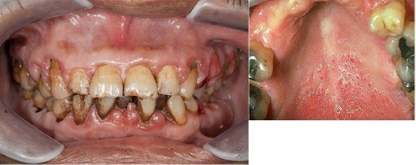 Nguy hiểm của khói thuốc lá trong đại dịch COVID-19 - Ảnh 3.