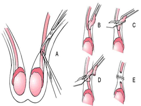 Thắt ống dẫn tinh có ảnh hưởng gì không và các biến chứng có thể xảy ra - Ảnh 2.