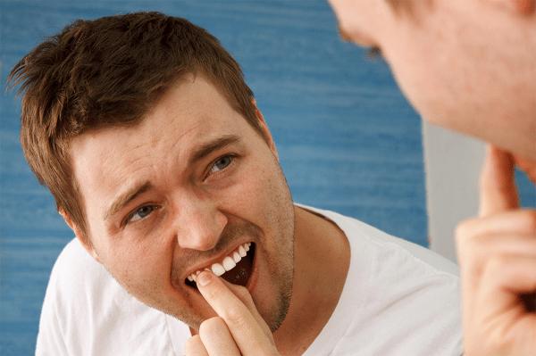 Răng vĩnh viễn bị lung lay: Nguyên nhân và biện pháp khắc phục - Ảnh 3.