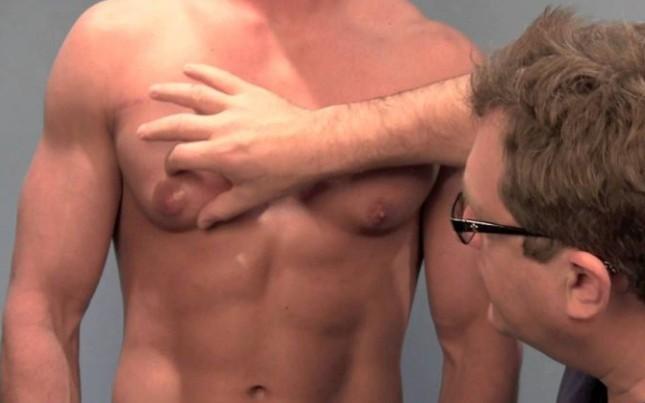 """4 dấu hiệu ung thư vú ở nam giới mà """"cánh mày râu"""" nên cẩn trọng theo dõi"""