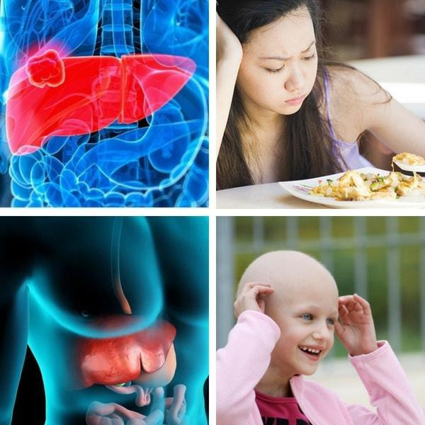 Ung thư gan giai đoạn cuối sống được bao lâu? - Ảnh 4.