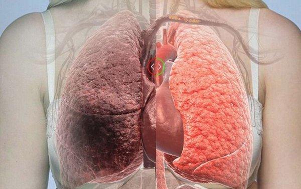 Ung thư gan giai đoạn cuối sống được bao lâu? - Ảnh 6.