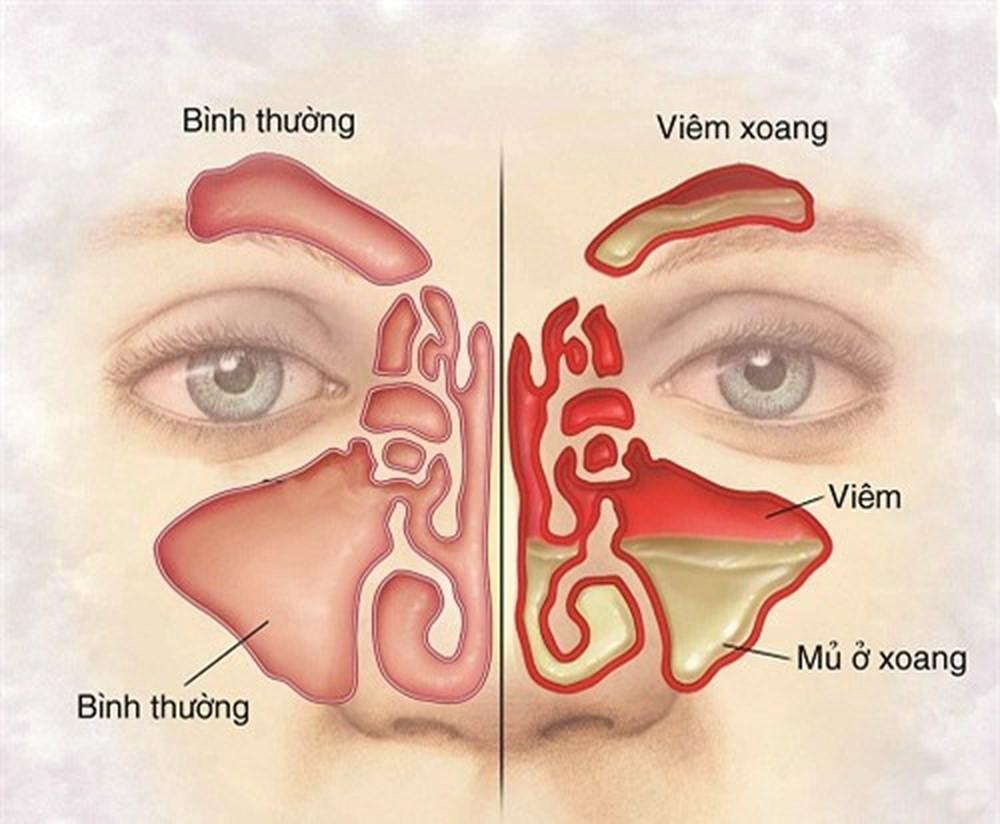 Nguyên nhân gây ra bệnh viêm xoang và cách điều trị  - Ảnh 1.