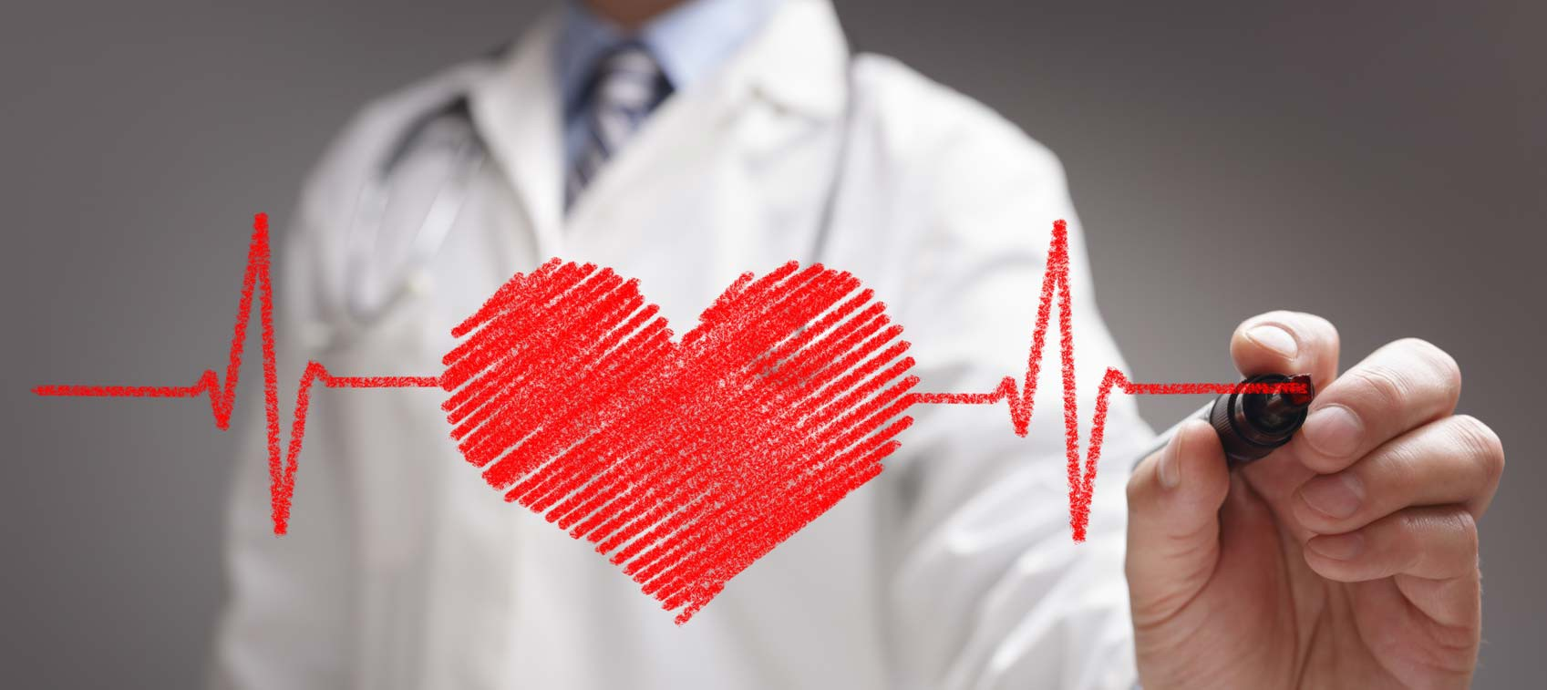 Bệnh thấp tim: Nguyên nhân và triệu chứng điển hình - Ảnh 3.