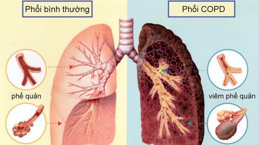 Bệnh phổi tắc nghẽn mãn tính là gì và các triệu chứng thường gặp
