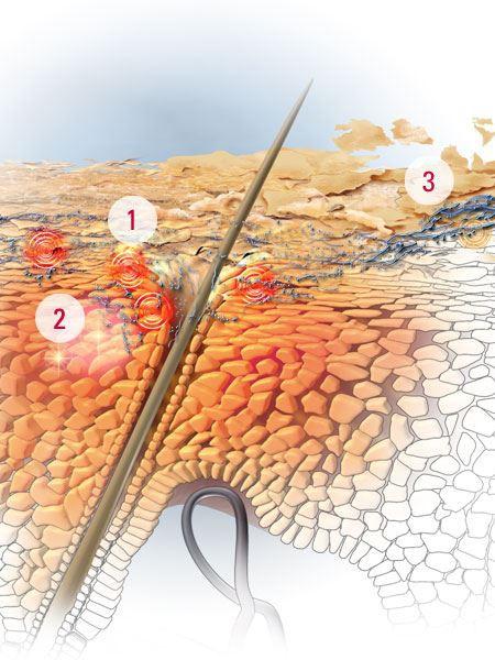 Dấu hiệu viêm da tiết bã ở trẻ sơ sinh và người lớn - Ảnh 2.