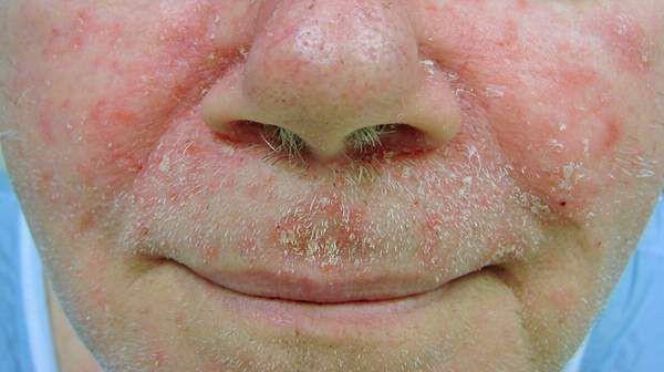 Cách chữa viêm da tiết bã ở mặt hiệu quả, không tái phát - Ảnh 2.