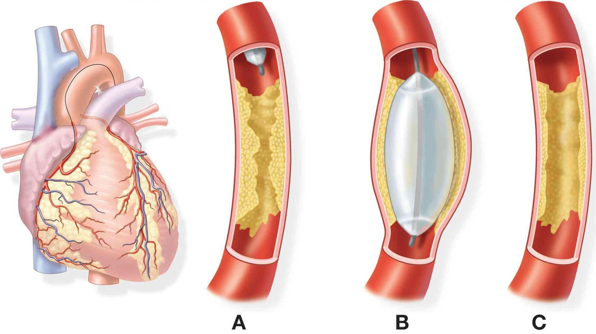 Bệnh nhồi máu cơ tim và cách xác định yếu tố nguy cơ - Ảnh 3.