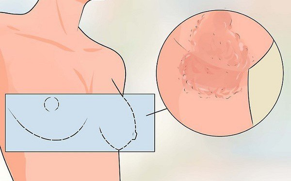 Những phản ứng của cơ thể sau khi xạ trị ung thư và cách xử trí an toàn