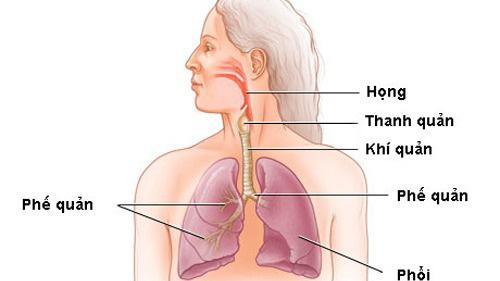 Ung thư khí quản là gì? Những điều cần biết để phòng và điều trị ung thư khí quản - Ảnh 4.