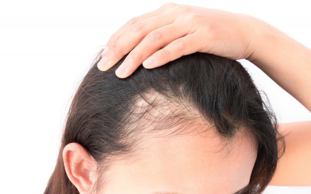 Tóc bạn đang thưa dần hay cứng hơn? Cẩn thận với nguy cơ mắc các bệnh sau!