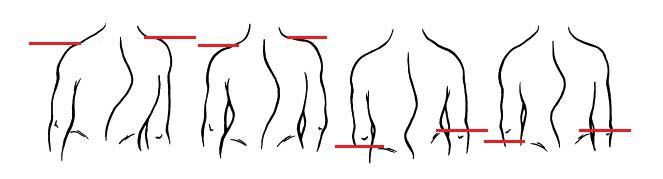 Tìm hiểu về các phương pháp chẩn đoán cong vẹo cột sống - Ảnh 1.