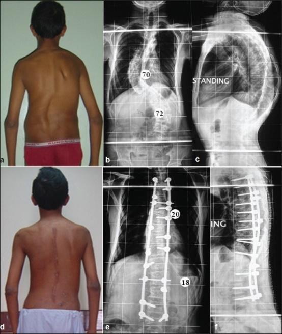 Quy trình phẫu thuật nắn chỉnh cong vẹo cột sống - Ảnh 2.