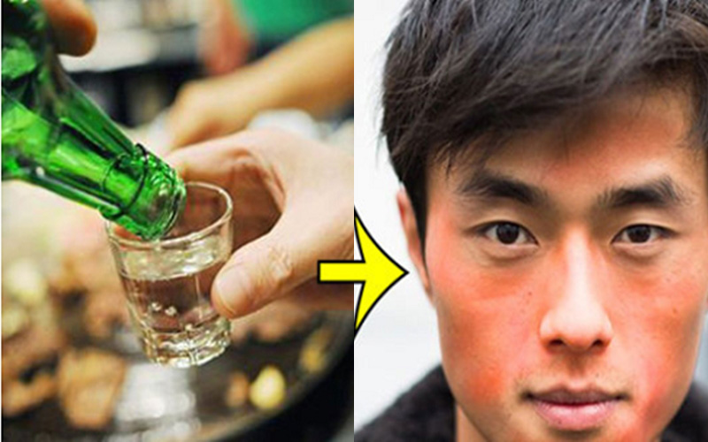 Tưởng bình thường khi uống rượu bia bị đỏ mặt, nào ngờ tiềm ẩn bệnh nguy hiểm
