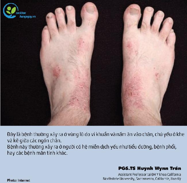 Chuyên gia chỉ ra hai loại bệnh thường gặp trong mùa mưa lũ và cách chữa trị - Ảnh 4.
