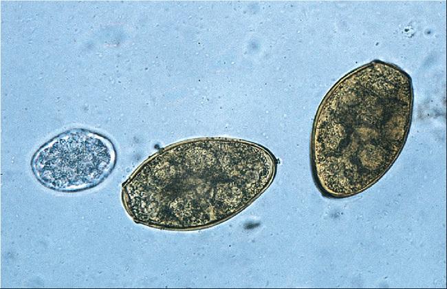 Cả gia đình bị sán lá phổi sau khi ăn cua: Cảnh báo loại ký sinh trùng đặc biệt nguy hiểm trong món ăn này! - Ảnh 2.