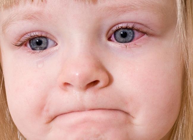 Tổng quan các dạng đau mắt đỏ bạn cần biết - Ảnh 2.