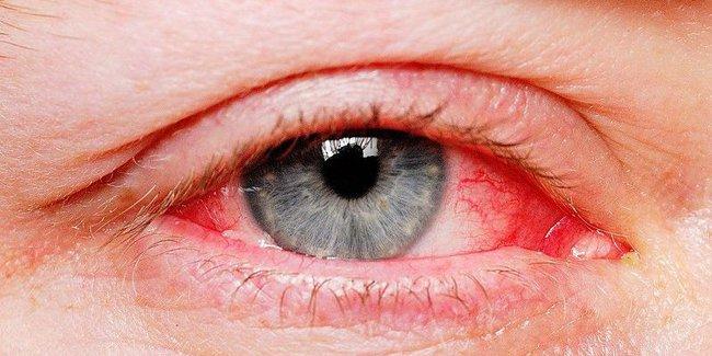 Tổng quan các dạng đau mắt đỏ bạn cần biết - Ảnh 1.
