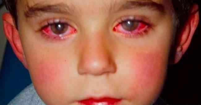 Những biện pháp phòng tránh bệnh đau mắt đỏ khi có dịch  người bệnh cần biết - Ảnh 2.