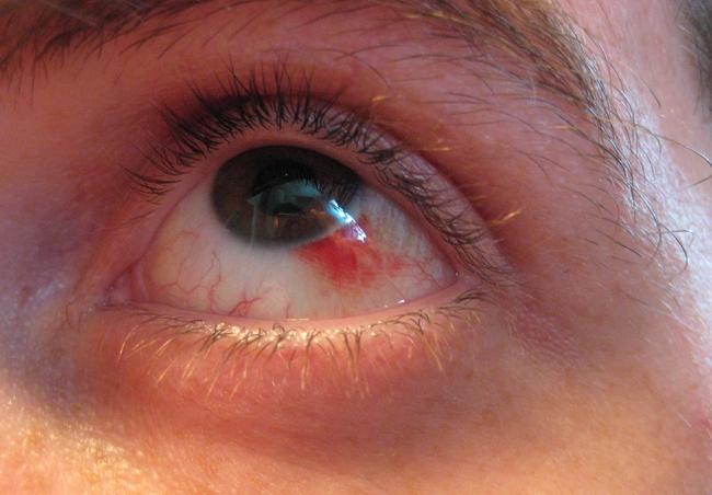Đau mắt đỏ chảy máu có nguy hiểm không? - Ảnh 1.