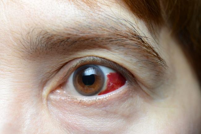 Đau mắt đỏ chảy máu có nguy hiểm không? - Ảnh 2.