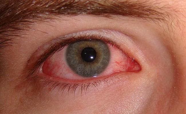 Đau mắt đỏ chảy máu có nguy hiểm không? - Ảnh 3.