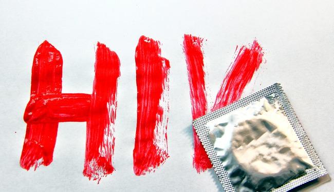 HIV/AIDS ở nam giới là gì? Nguyên nhân và cách điều trị - Ảnh 9.