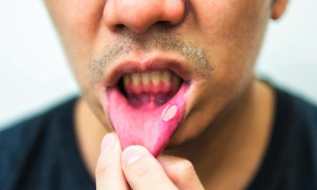HIV/AIDS ở nam giới là gì? Nguyên nhân và cách điều trị - Ảnh 7.