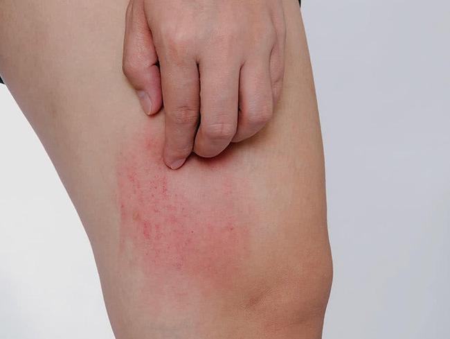 Sẩn ngứa mùa hè: Bệnh ngoài da thường gặp cần cảnh giác - Ảnh 3.