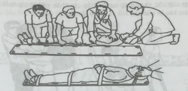 Xử trí chấn thương cột sống – Những lưu ý trong sơ cứu ban đầu - Ảnh 3.