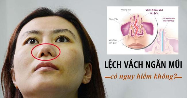 Vẹo vách ngăn mũi là gì? Phẫu thuật vẹo vách ngăn mũi có đau không? - Ảnh 2.