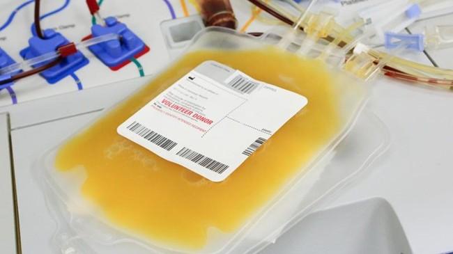 Huyết tương là gì? Thành phần và chức năng của huyết tương - Ảnh 2.