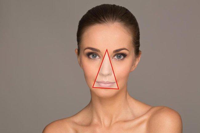 Nhiễm trùng nội sọ do nặn mụn sai cách ở vùng tam giác chết trên mặt, chuyên gia khuyên gì? - Ảnh 3.