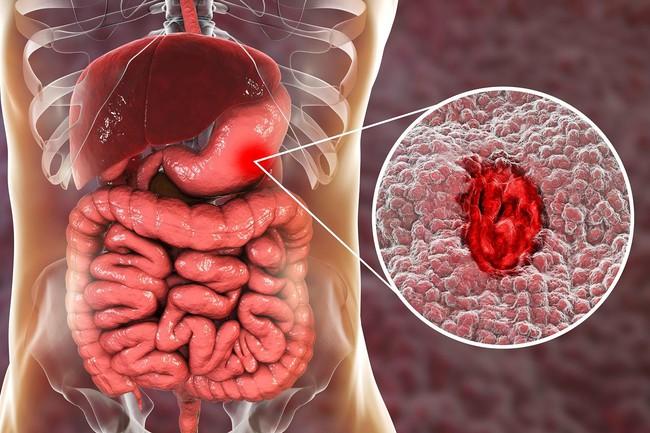 Điểm danh 5 bệnh mùa thu thường gặp và cách phòng tránh - Ảnh 4.